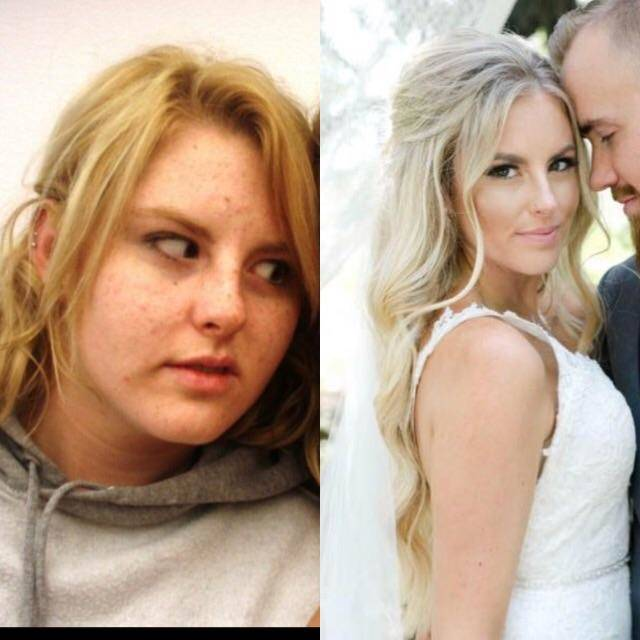 before with acne and after at wedding
