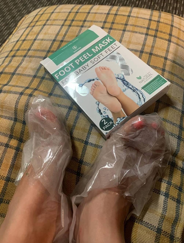 someone wearing a foot peel wrap