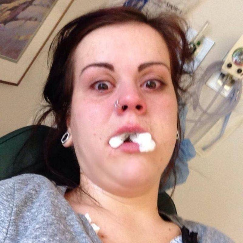 woman took a funny selfie of herself after surgery