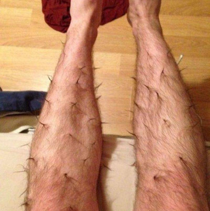 someone with their leg hair twisted into little spikes