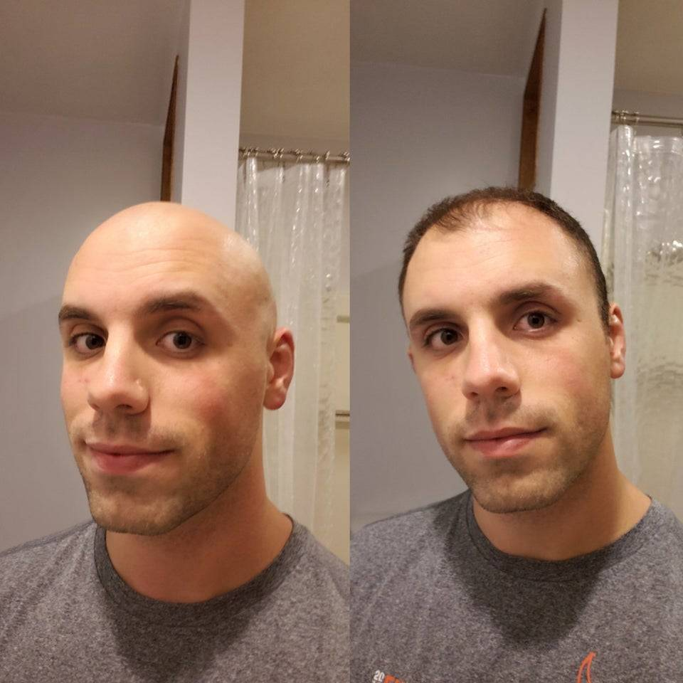 Side-by-side photos of man fully bald and before he shaved