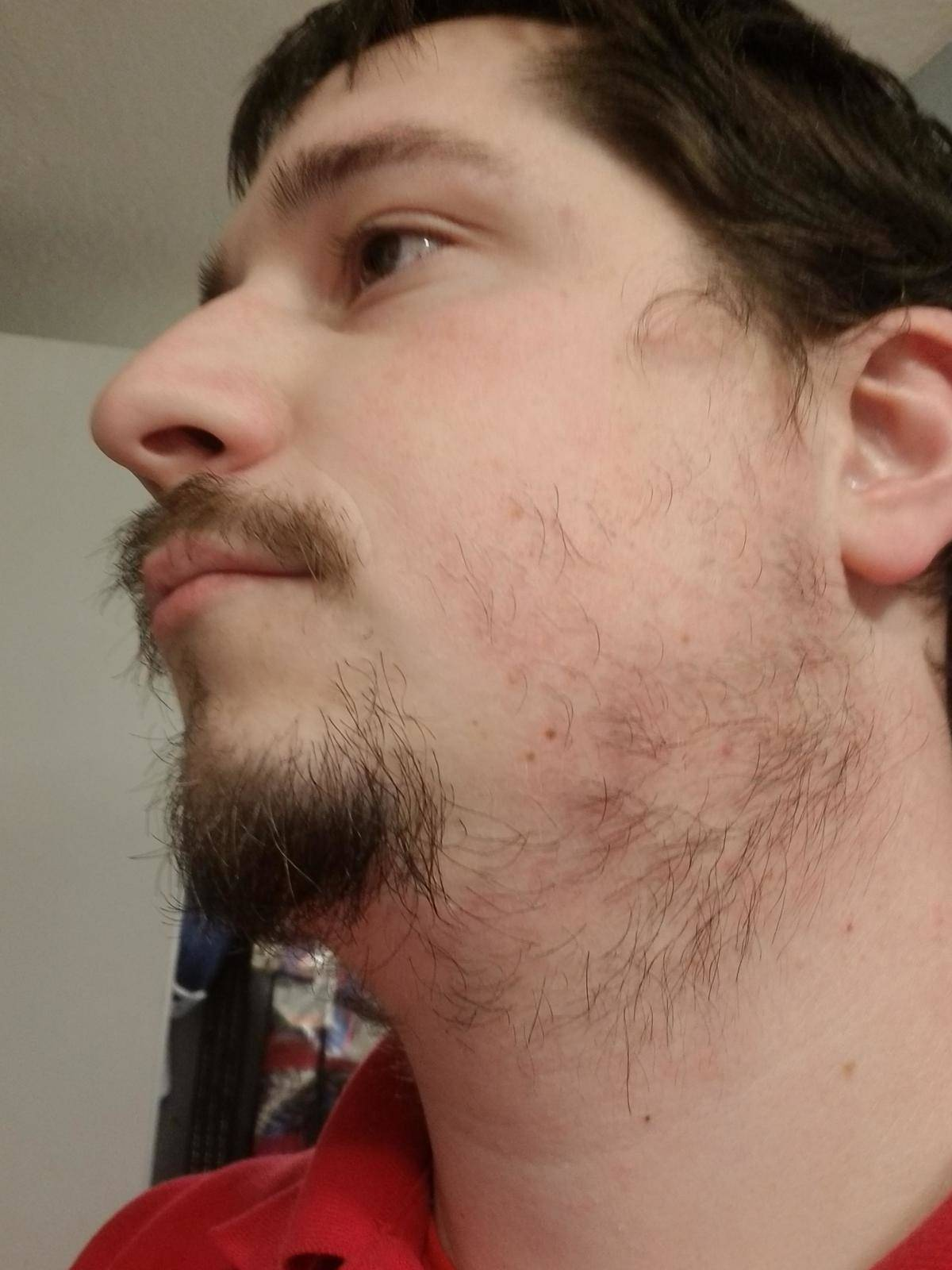 Side view of man with patchy facial hair