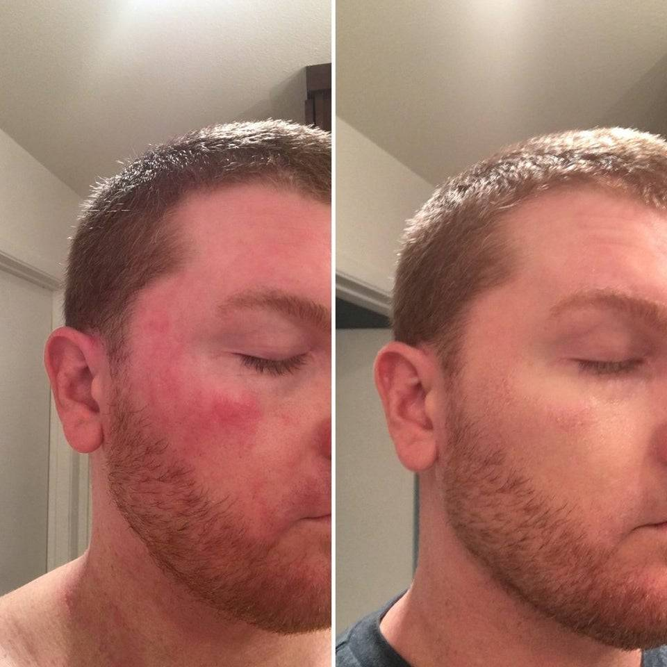Side-by-side picture of man's face that is red and the same man with clear skin is beside it