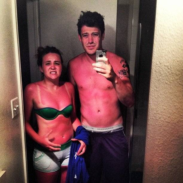 White people terribly sun burned