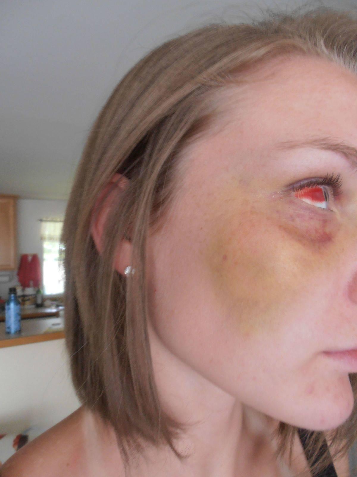 Woman with broken cheekbone and burst blood vessels